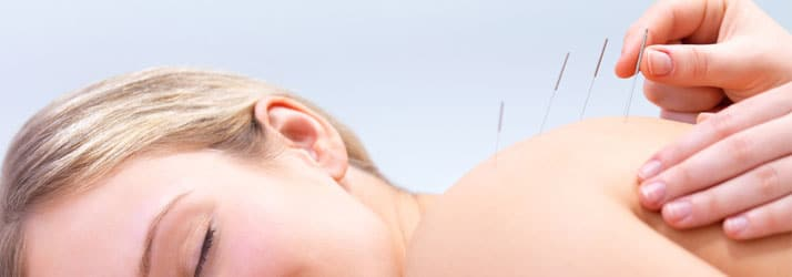 Chiropractic Oakbrook Terrace IL Acupunture